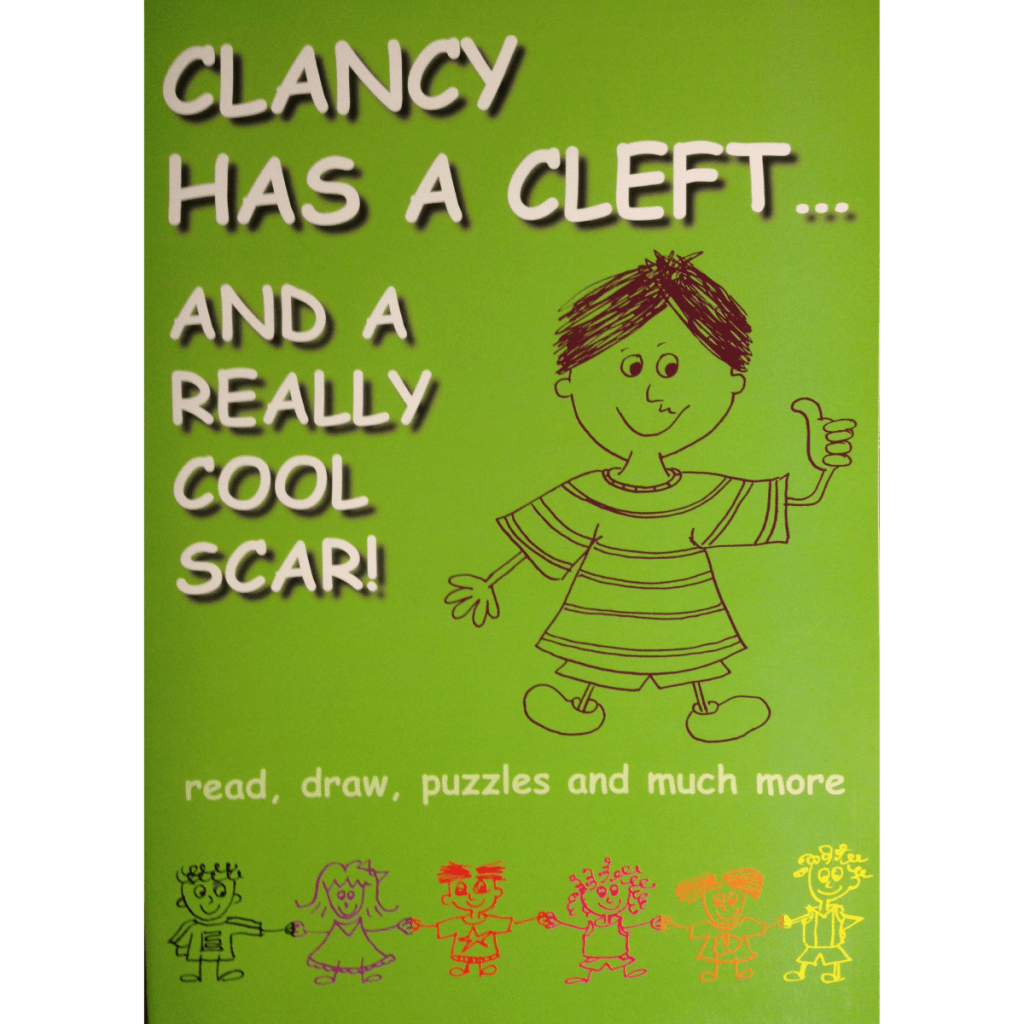Clancy has a cleft…and a really cool scar